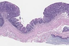 An engrafted tumor created by transplanting organoids into a mouse colon