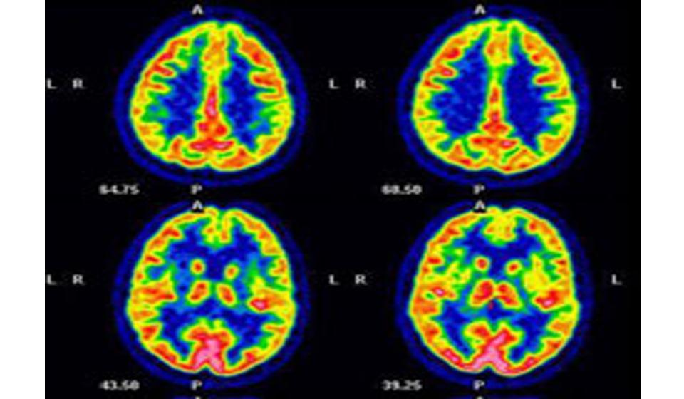 Alzheimers Imaging