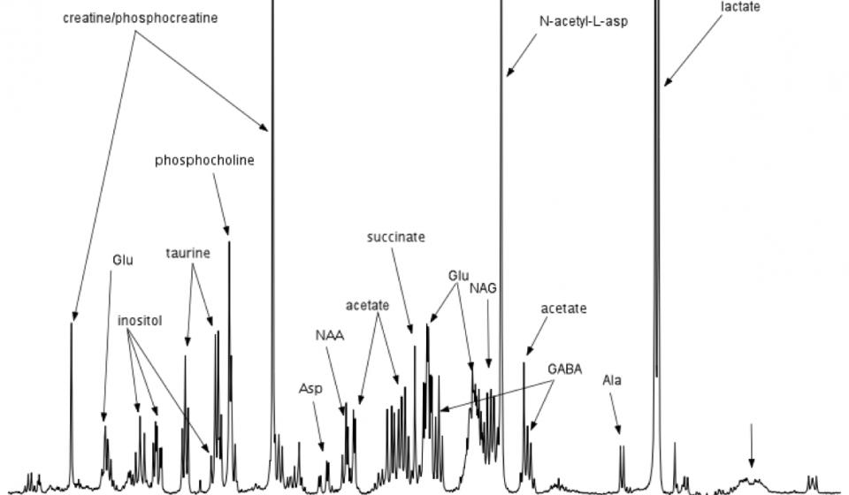 Analysis of Neuronal Fluid