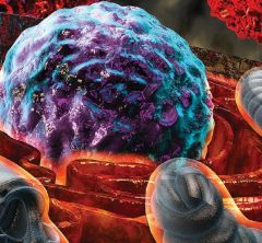 """Stressful Situation: A scientific illustration shows how T-cells that are exposed to harsh conditions inside a tumor experience endoplasmic reticulum (ER) stress, depicted by """"burning"""" ER (orange) surrounding the nucleus (purple and turquoise). Mitochondria are seen in bluish gray, with cancer cells in red. Credit: Ella Maru Studio"""